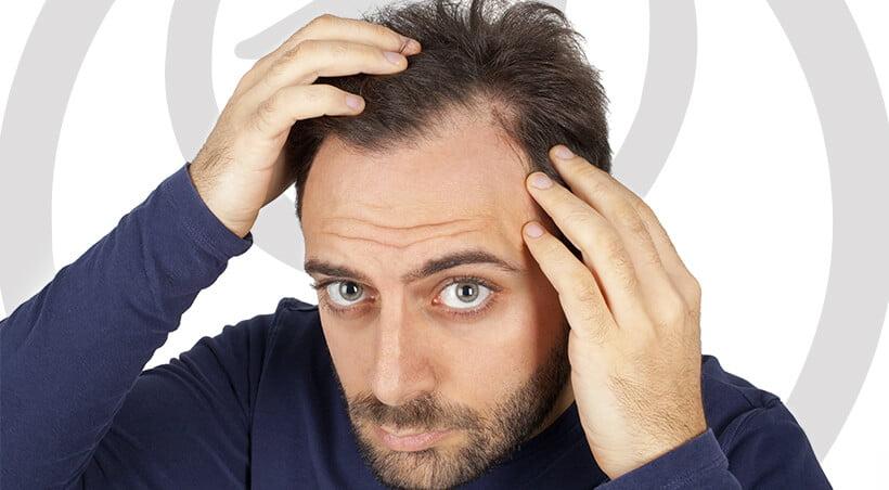 Imagem Alopecia Areata
