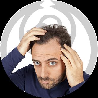 dermaline-dermatologia-patologia-imagem-alopecia-areata-thumb
