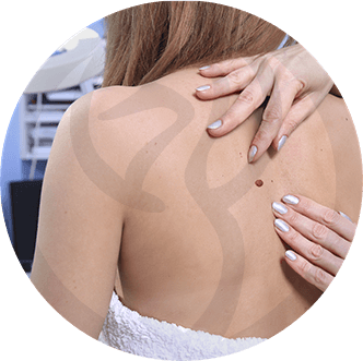 dermaline-dermatologia-patologia-imagem-cancer-de-pele-thumb