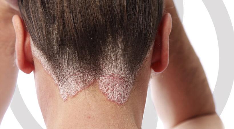 Imagem Dermatite Seborreica