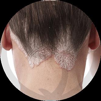 dermaline-dermatologia-patologia-imagem-dermatite-seborreica-thumb