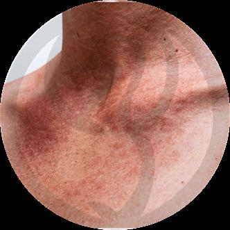 dermaline-dermatologia-patologia-imagem-fotossensibilidade-thumb