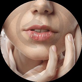 dermaline-dermatologia-patologia-imagem-herpes-thumb
