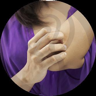 dermaline-dermatologia-patologia-imagem-micose-thumb