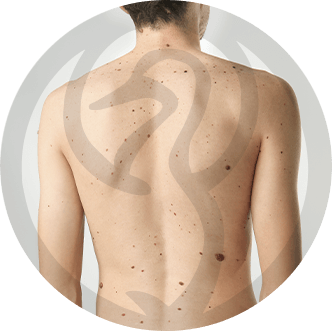 dermaline-dermatologia-patologia-imagem-nevos-thumb