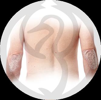 dermaline-dermatologia-patologia-imagem-psoriase-thumb
