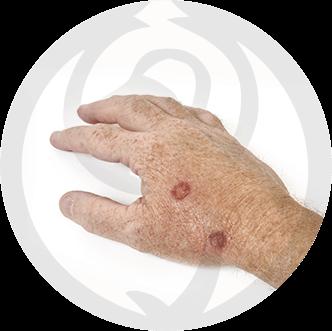dermaline-dermatologia-patologia-imagem-queratose-actinica-thumb
