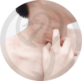 dermaline-dermatologia-patologia-imagem-urticaria-thumb