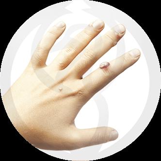 dermaline-dermatologia-patologia-imagem-verruga-thumb