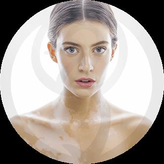 dermaline-dermatologia-patologia-imagem-vitiligo-thumb