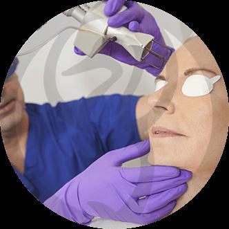 dermaline-procedimentos-procedimentos-esteticos-imagem-laser-co2-thumb