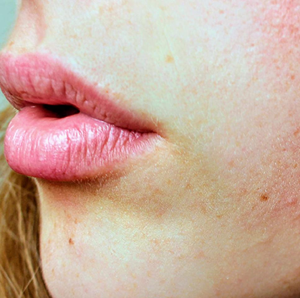 como tratar poros dilatados?